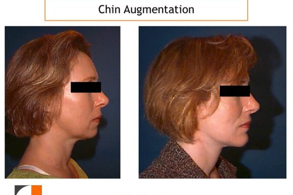 Chin Implant result in profile