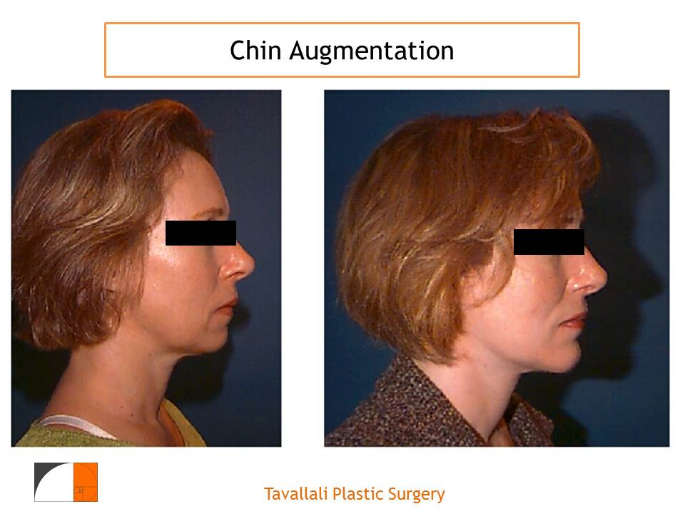 Chin Surgery Explained