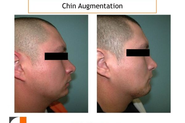 Chin Augmentation with silicone Implant