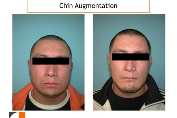 Chin Augmentation at Tavallali Plastic Surgery