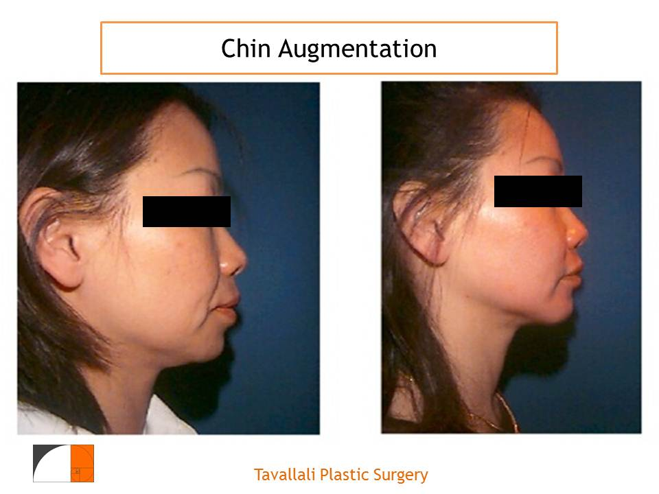 Chin Enlargement Surgery for an Online You
