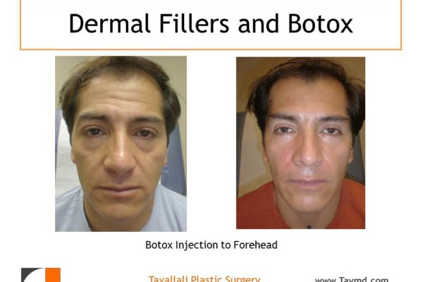 Botox injections to forehead before and after