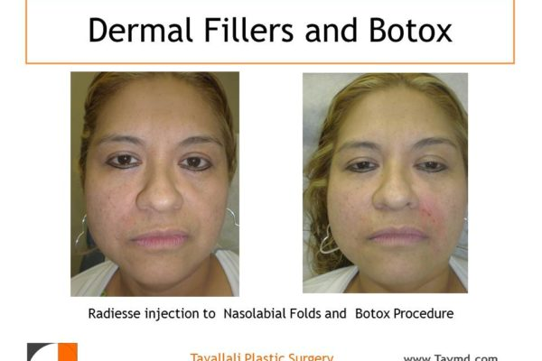 early result Dermal skin filler Radiesse injection to face before after