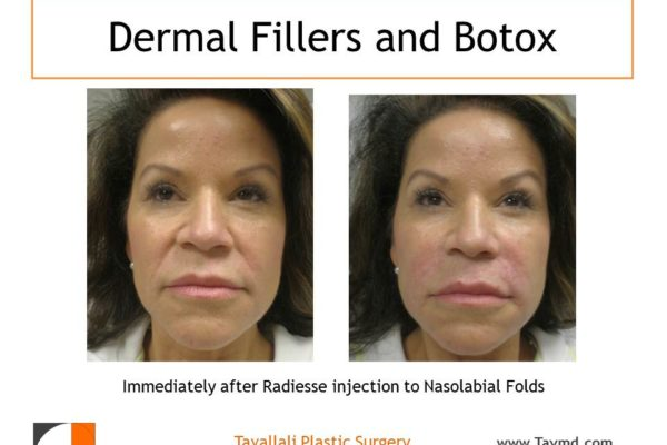 Immediate result Dermal skin filler Radiesse injection to face before after