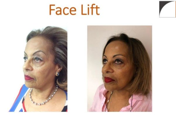 Mini facelift plastic surgery before after photo northern virginia