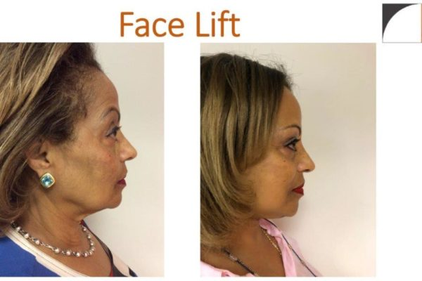 Profile before after face lift surgery