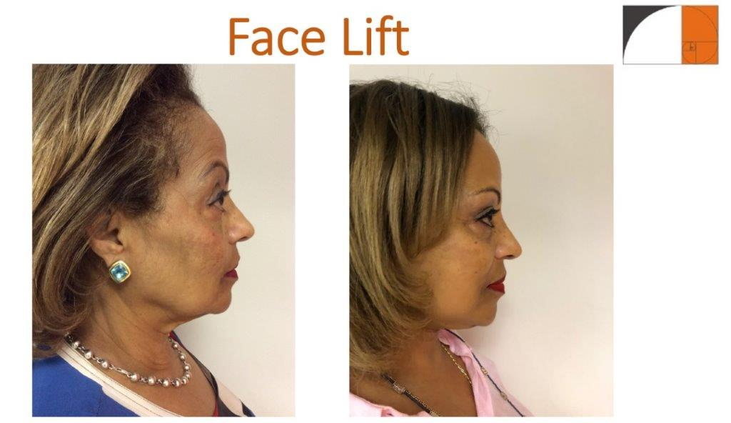 Face lift with local anesthesia