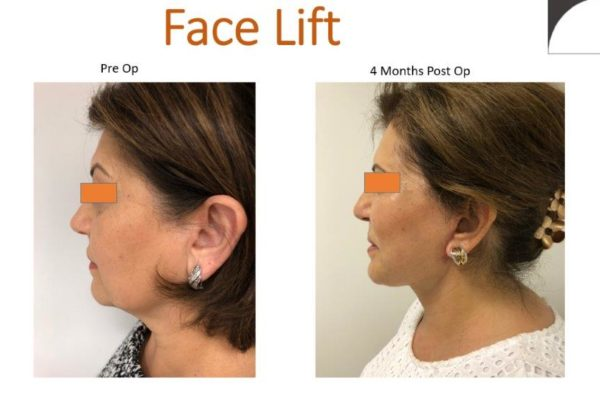 Facelift surgery result in profile