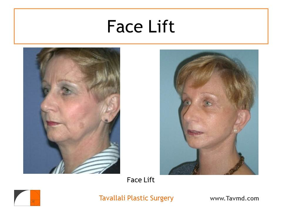 Profile of woman before and after face lift plastic surgery