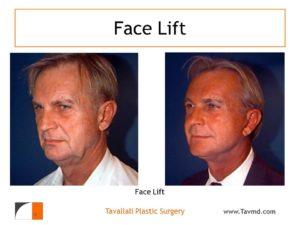 Man before and after facelift and eyelid surgery