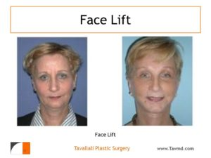 Woman before & after Facelift and eyelid surgery