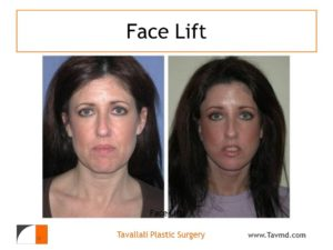 Young woman with facelift surgery