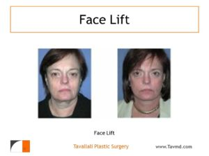Woman with before and after facelift surgery