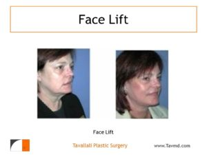 Before and after of facelift surgery