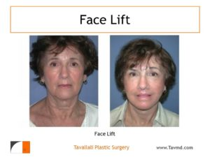 Woman with result of Face and brow lift