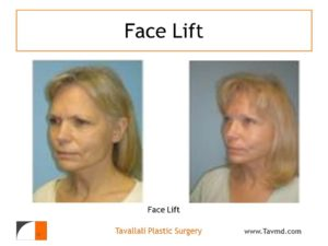 Facelift and brow lift surgery result