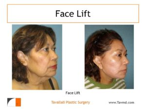 Facelift surgery before after photo northern VA