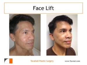 Young man with face lift surgery results
