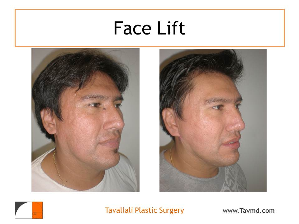 Facelifts for acne scarring