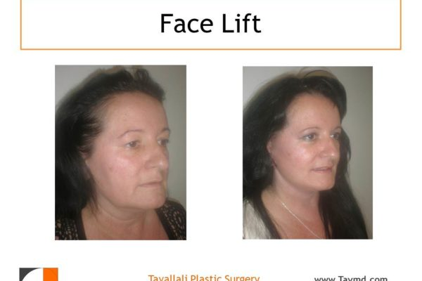 Facelift surgery results of woman