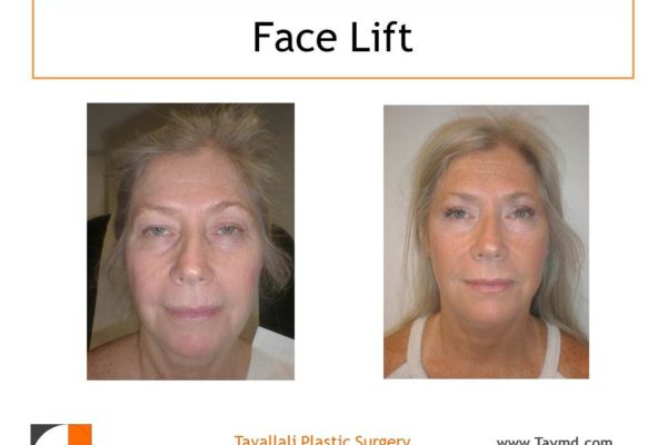 Woman with Face lift before after surgery