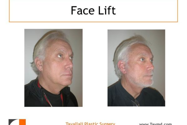 Man before after face lift surgery