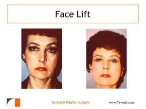 Full facelift results in Virginia