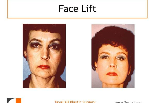 Full facelift results in Virginia