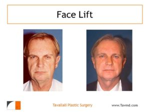 Man with before and after facelift surgery