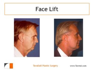 Profile of man with facelift surgery results
