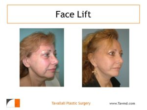 Woman with face lift surgery