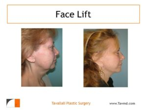 Profile of woman with facelift surgery