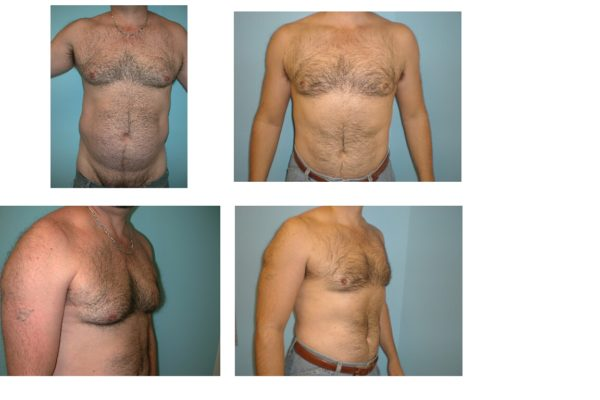 Male breast reduction Gynecomastia with only liposuction no scars