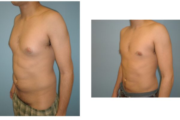 Male breast reduction Gynecomastia before after