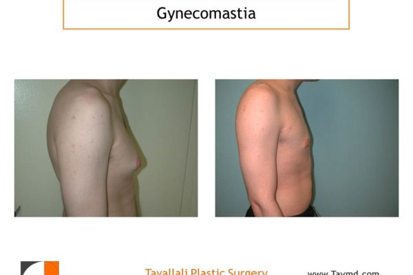 Male breast reduction Gynecomastia side view