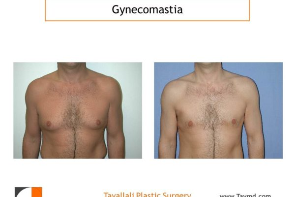 Male breast reduction Gynecomastia result with liposuction