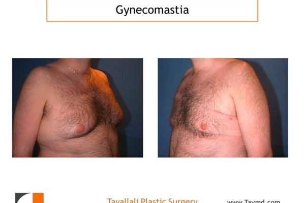 Male breast reduction Gynecomastia before and after