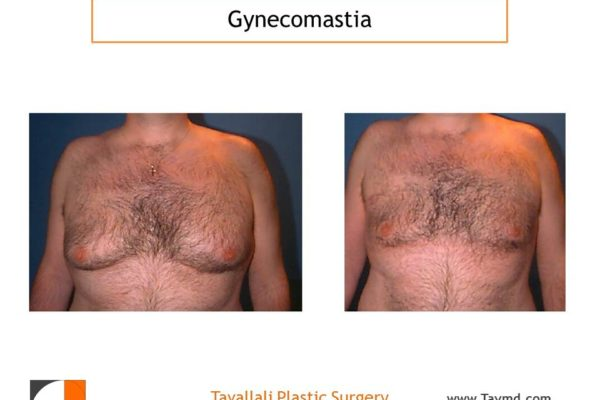 Male breast reduction Gynecomastia liposuction chest