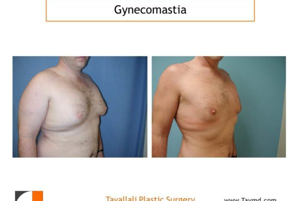 Male breast reduction Gynecomastia with liposuction
