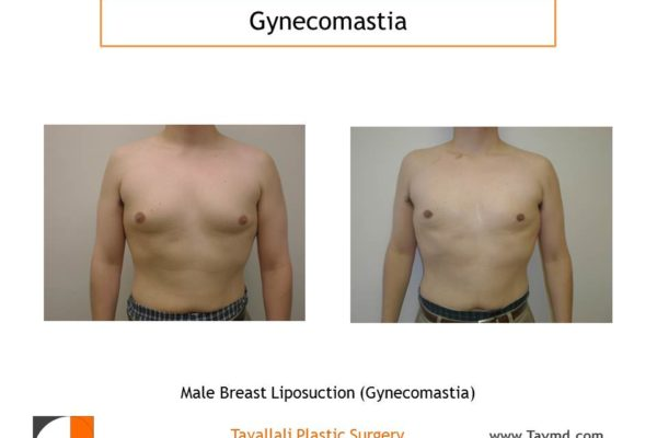 Male breast reduction Gynecomastia lipo chest before after