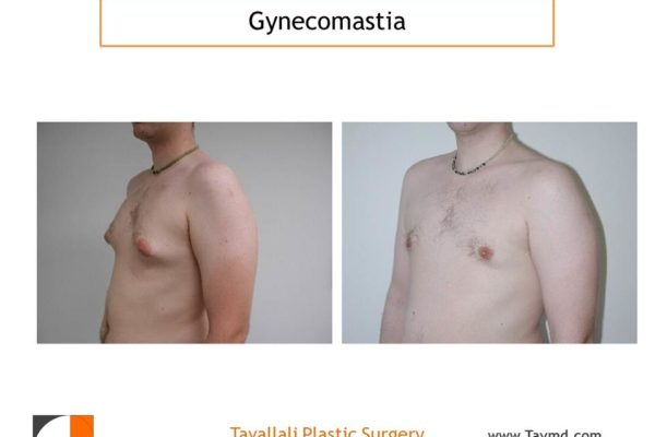 Male breast reduction Gynecomastia with no incision