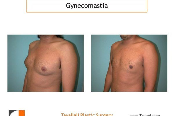 Gynecomastia surgery, male breast reduction, before & after photos Tavallali Plastic Surgery Northern VA