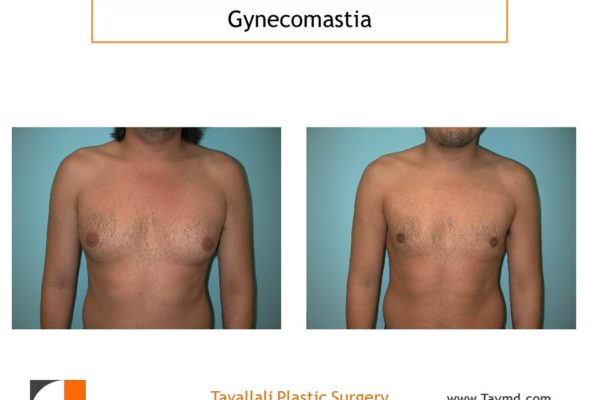Male breast reduction Gynecomastia front view with lipo