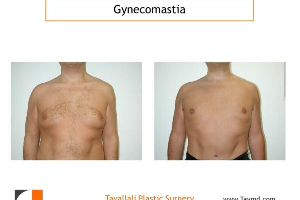 Male breast reduction Gynecomastia liposuction only