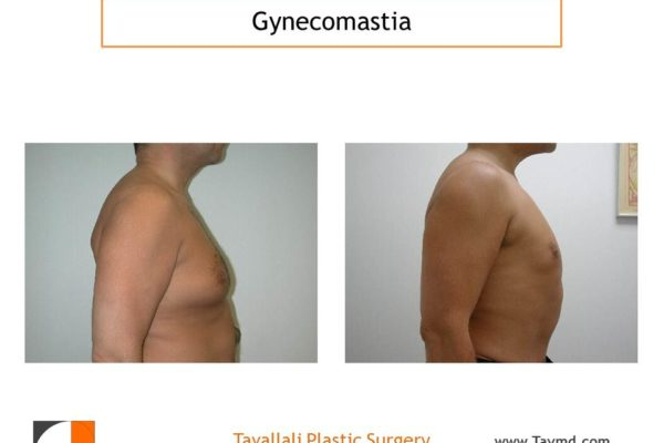 profile view of Male breast reduction Gynecomastia