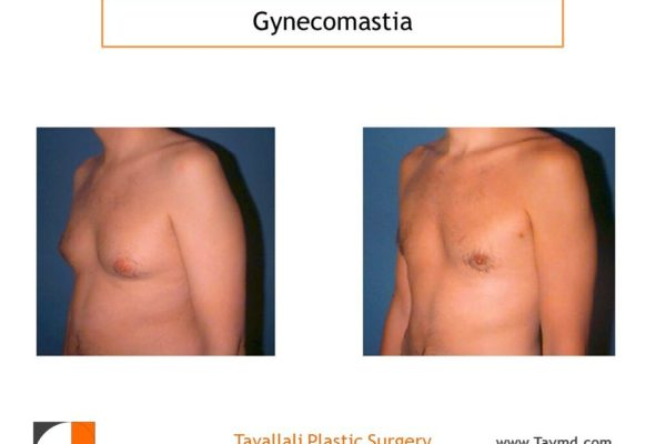 Male breast reduction Gynecomastia result with lipo