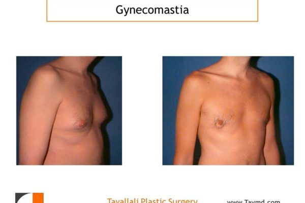 Male breast reduction Gynecomastia before after VA