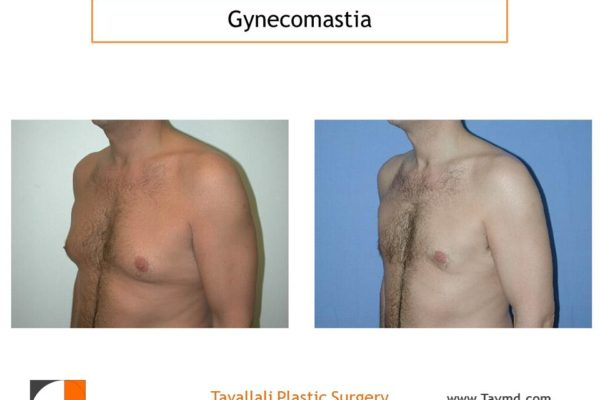 Liposuction method for Male breast reduction Gynecomastia