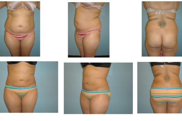 Three views liposuction abdomen and flanks before after