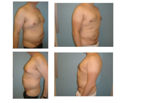 man with liposuction abdomen chest and flanks before after
